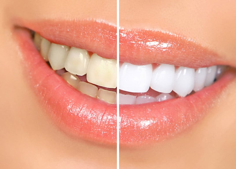 blanqueamiento dental sonrisa radiante