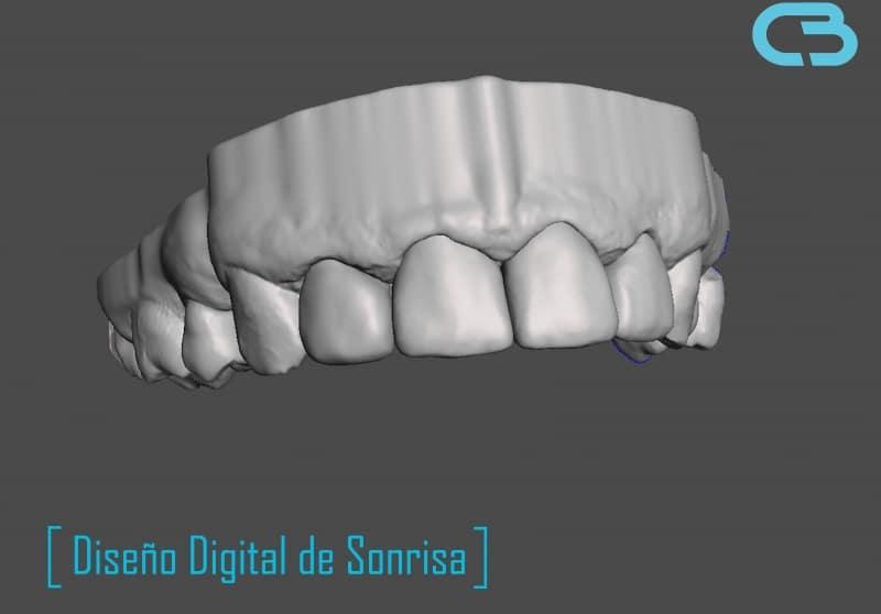diseño digital de sonrisa en meshmixer para clinica odontologica