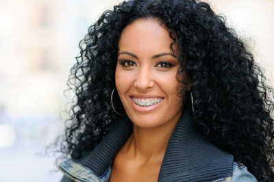 mujer sonriendo radiante blanca perfecta ortodoncia